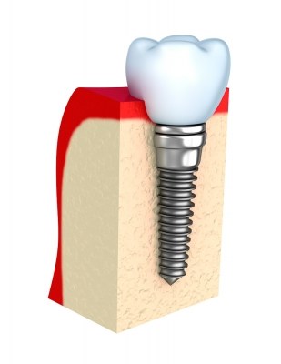 IMPLANT INSERTION SURGERY