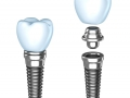Riscuri Implant-Lucrare Dentara Pe Implant